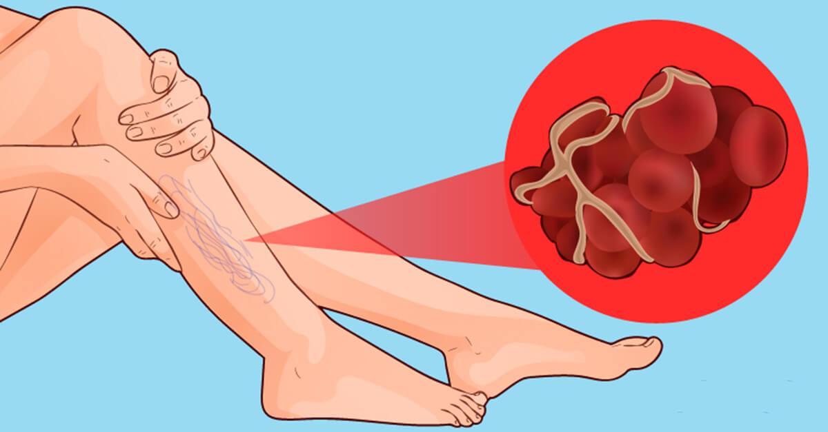 De na sangue perna sintoma coágulo