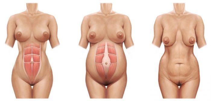 Diastasis abdominal sintomas e1491461319497 700x336 - Diástase abdominal: o que é e como combatê-la?