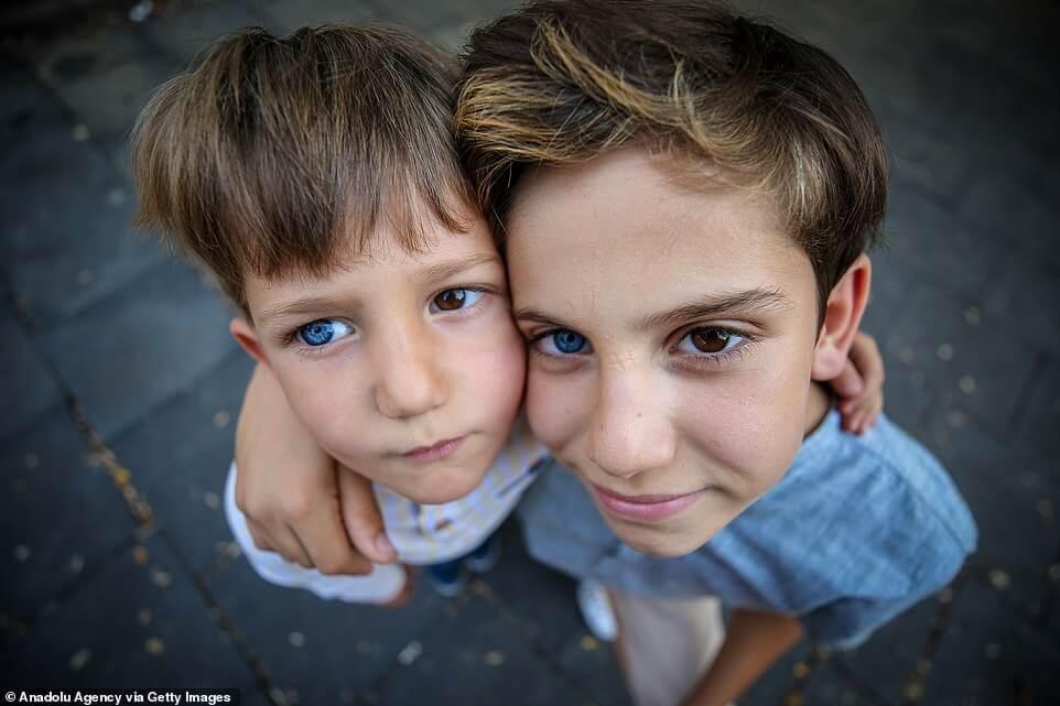 19004390 7511583 image a 21 1569577707702 - Irmãos nascem com um olho de cada cor e fotos impressionam