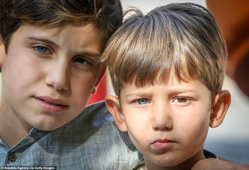 19004402 7511583 image a 19 1569577688927 - Irmãos nascem com um olho de cada cor e fotos impressionam
