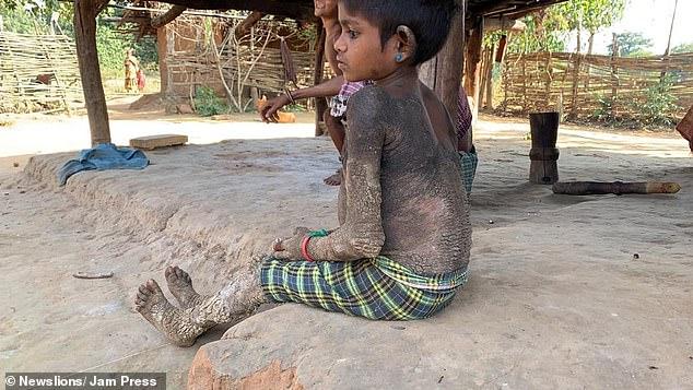 """24387192 7973289 image a 8 1580985296880 - Difícil se mexer: doença rara faz pele de menina virar """"pedra"""""""