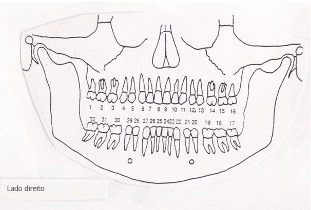 dentes ladodireito - Cada dente está associado a um órgão do corpo - a dor em cada dente pode indicar problemas em certos órgãos