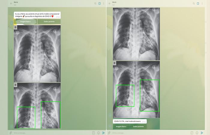 20200708111005999766u - Aplicativo criado na USP faz o diagnóstico da covid-19 a partir de radiografia do pulmão