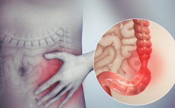 1280px Irritable bowel syndrome 356x220 - Início