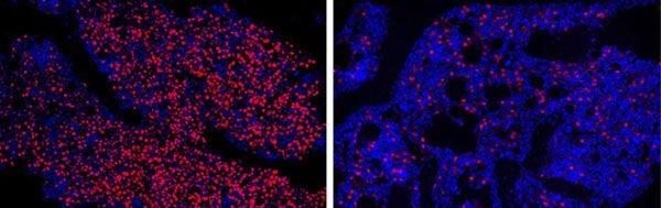 2E8O5DineoKFw0th6FqmQozxaR9M jBiX6zLje6QUpY - Molécula de DNA projetada ajuda a encontrar células-tronco cancerosas no sangue