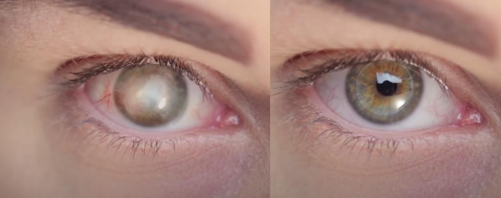 antes depois implante 1024x404 1 - Homem recupera a visão após se tornar a primeira pessoa a receber uma córnea artificial