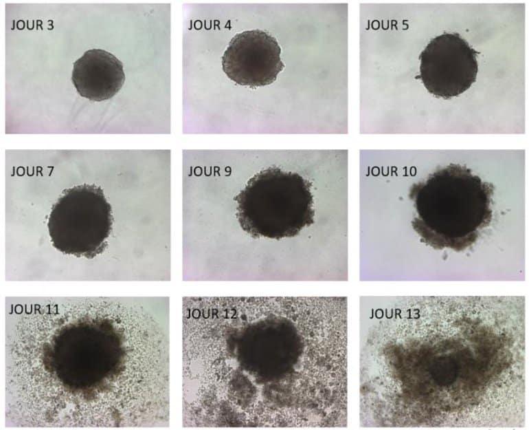 dha tumor suppression neuroscienes - Um ômega-3 que é veneno para tumores
