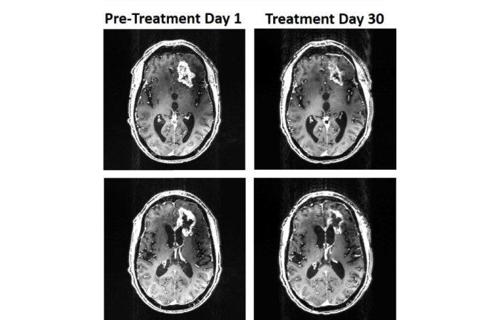 000CPWJBWD4I7GO3 C122 F4 - Protótipo de capacete magnético reduz câncer de cérebro agressivo em primeiro caso no mundo