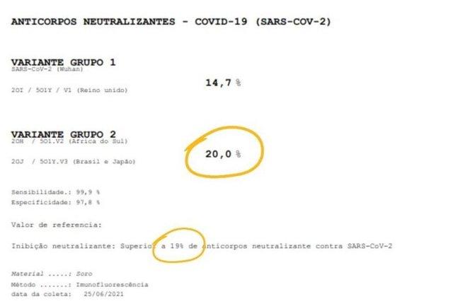 335640 15f45adbac1edff - Menino de SC adquire anticorpos contra o coronavírus pela amamentação, aponta exame