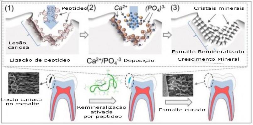 400 - Tratamento dentário engenhosamente simples pode curar cáries dentárias sem qualquer obturação