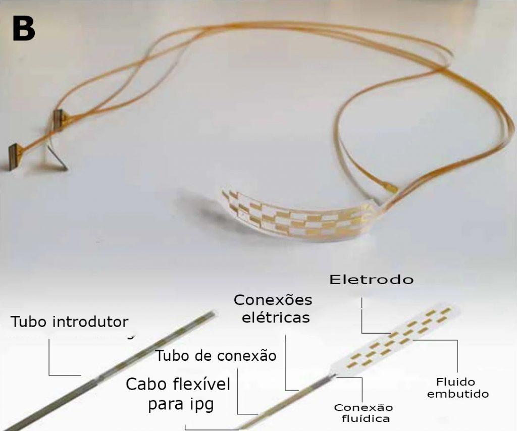 """full device with string and needle 2 1024x854 - Implante de medula espinhal """"inflável"""" inovador pode tornar o alívio da dor amplamente disponível"""