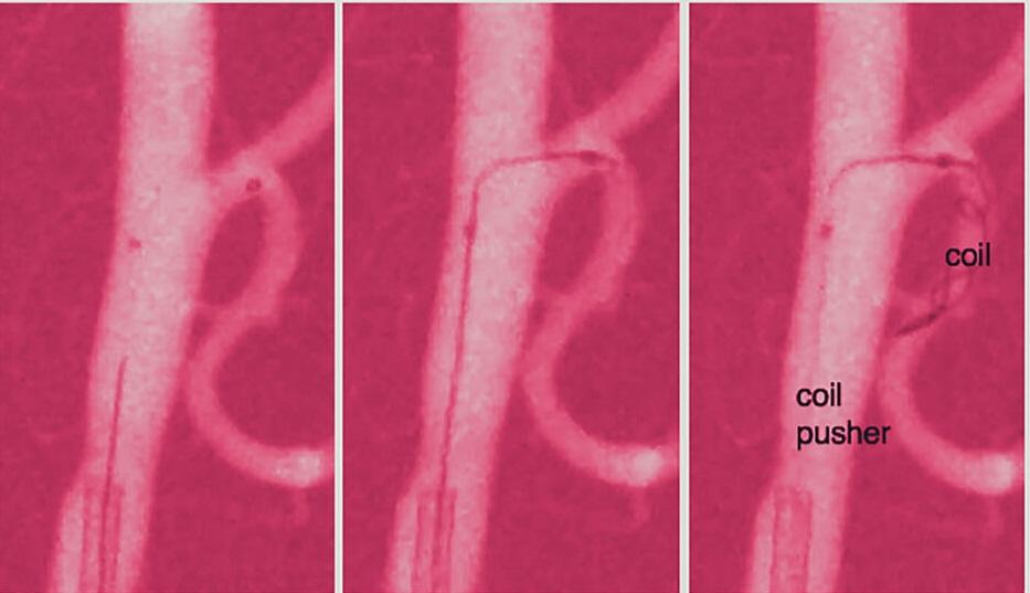 Insect inspired catheter steers through brains intricate pathways2 1024x620 1 - Cateter orientável inspirado em insetos para tratar aneurismas difíceis de alcançar