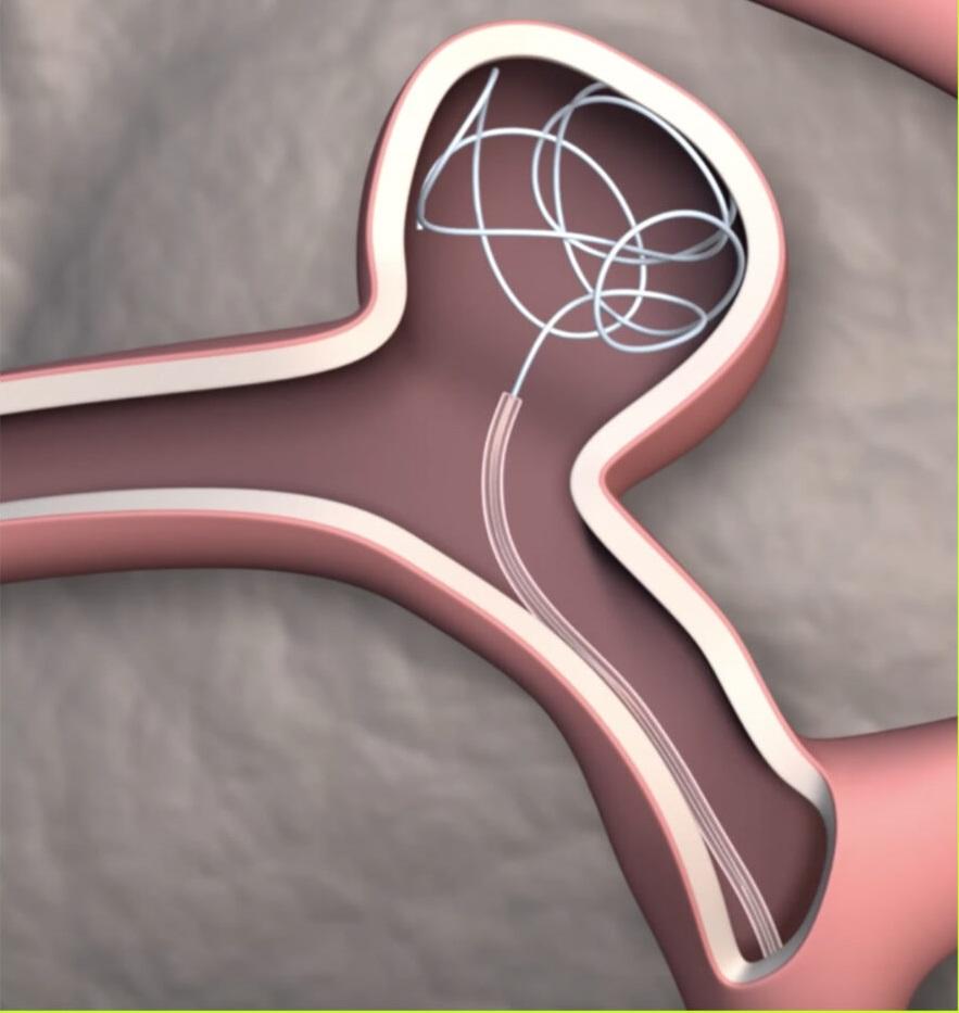 pathways 960x1011 1 - Cateter orientável inspirado em insetos para tratar aneurismas difíceis de alcançar